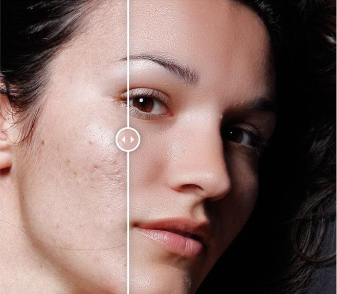 Portraiture 3 Plug In makes skin retouching easy
